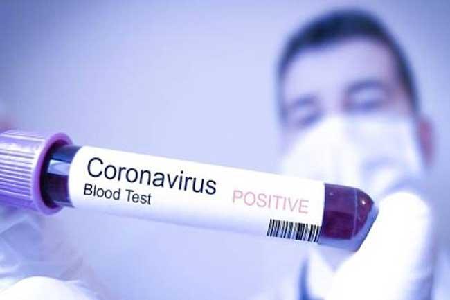 Ilustrasi Blood Test Coronavirus.(Sumber: Gatra.com)